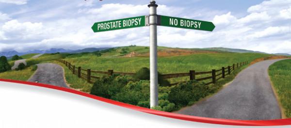Prostate Health Index - phi